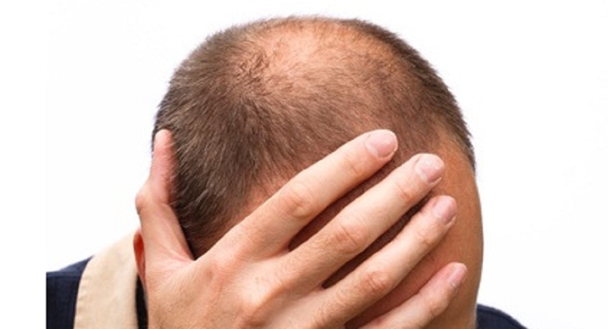 薄毛につながる「頭皮湿疹」の種類とは?アイキャッチ